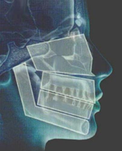 1ºWorkshop de Cirurgia Vídeo Assistida Buco-Maxilo-Facial é realizado no HUSFP